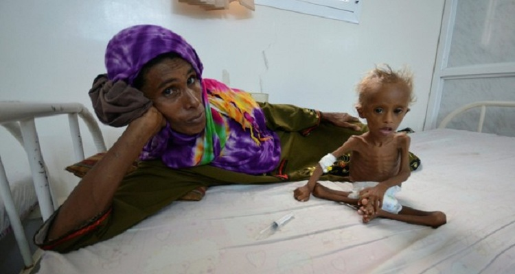 Catastrophic Famine in Yemen